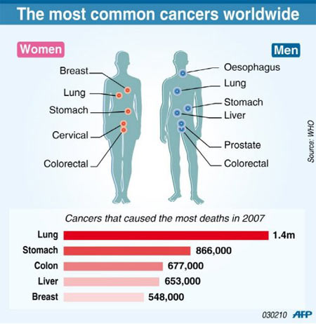 the characteristics of prostate cancer the second most common cause of death in men